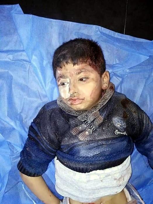 SEDDIK Adnan Syria Charity bombardemant Syrie exode, children enfants blesses Montceau-news.com 1303191
