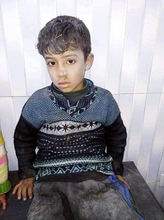 SEDDIK Adnan Syria Charity bombardemant Syrie exode, children enfants blesses Montceau-news.com 1303192