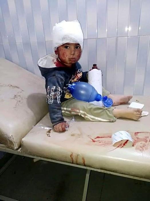 SEDDIK Adnan Syria Charity bombardemant Syrie exode, children enfants blesses Montceau-news.com 1303193